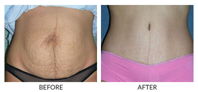 Visit Our Tummy Tuck Gallery